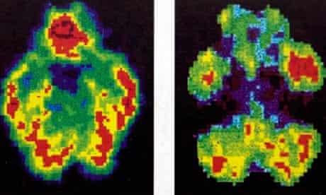 Scans of a normal brain, left, beside that of murderer Antonio Bustamante