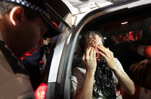 Brazil Protest:: An injured demonstrator