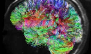 If Genes Dont Turn Off Brains Wiring >> Human Behaviour Is It All In The Brain Or The Mind