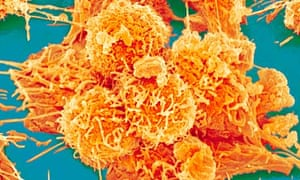 Colon cancer cell