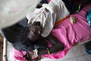 Mikuer, 20, lies on a hospital bed after receiving treatment for a hand injury at Bor hospital, Jonglei state, South Sudan. Two hundred civilians have been wounded in ongoing clashes between rival tribes in South Sudan's largest state.