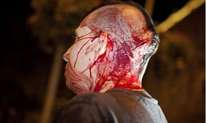 A protester suffers a cut to the head during the Madrid clashes.