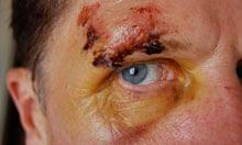Philip Hoare's eye injury after his helmet-free cycle crash in Bath