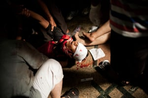 20 Photos: Doctors treat a supporter of Egypt's ousted President Mohammed Morsi