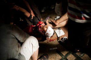 Cairo: Doctors treat an injured Morsi supporter