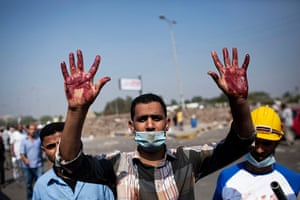 Cairo: A Morsi supporter shows his bloody hands