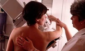mammogram, rear view mammogram breast examination cancer