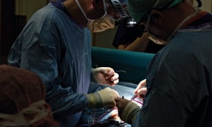 Finn Jones at 10 days, during a five-hour operation by surgeon Conal Austin