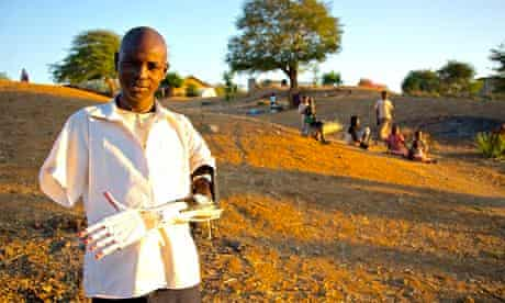 Daniel Omar with his prosthetic arm