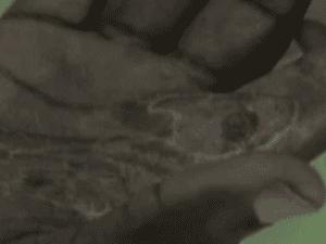 An asylum seeker shows his burnt hand