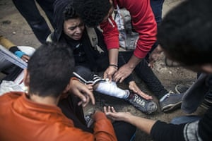 Cairo protest: A protestor injured by a rubber bullet