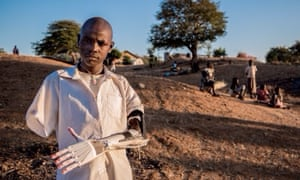 A prosthetic arm made for a 16 year-old bomb victim in Sudan.