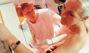 Breast cancer screening mammography