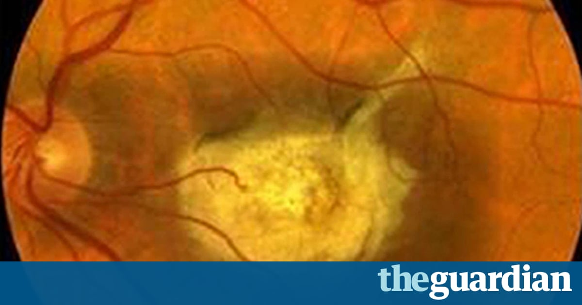 Stem Cell Therapy Success In Treatment Of Sight Loss From