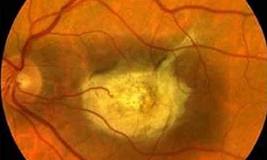 Diseased eye