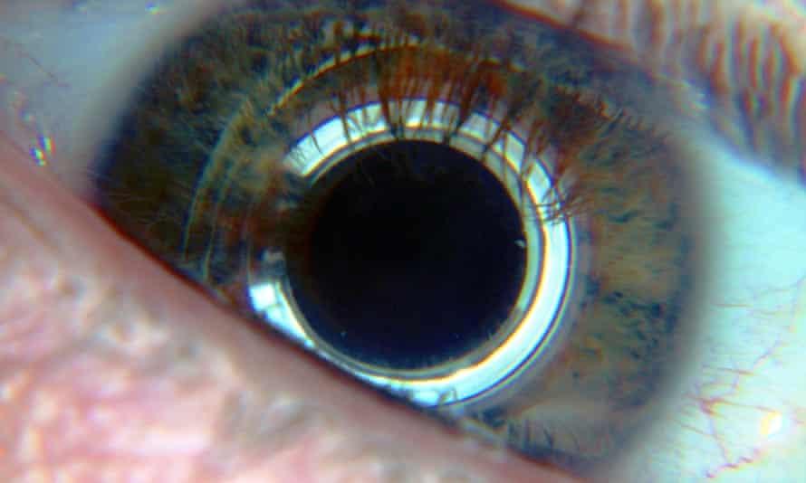 cyborg eye