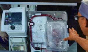 St Vincent's Hospital dead heart transplant