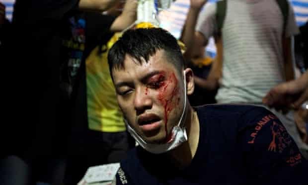 An injured pro-democracy protester receives medical attention in Hong Kong