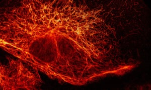 A network of filaments in a mammalian cell revealed by fluorescence microscopy.