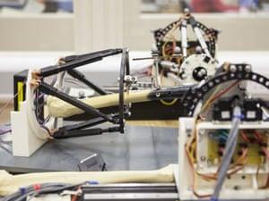 robot mending bones