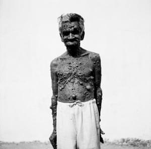 Old man suffering with Neurofibromatosis Juhu 1999