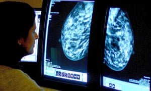 An NHS consultant analysing a mammogram, looking for breast cancer