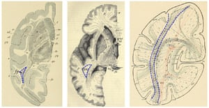 Illustrations from 1880s brain atlases by Carl Wernicke (left), Heinrich Obersteiner (middle), and Heinrich Sachs (right) showing the vertical occipital fasciculus in the monkey and human brain. From Yeatman, <em>et al</em> (2014).