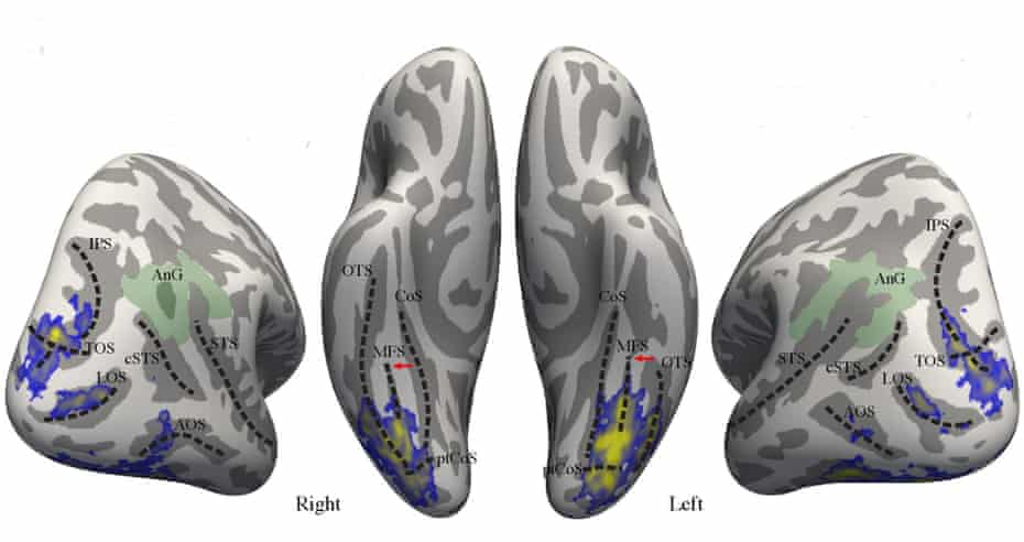 Colour brain map showing the extent of the vertical occipital fasciculus (blue), averaged from scans of 37 study participants.