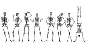 x ray skeleton line