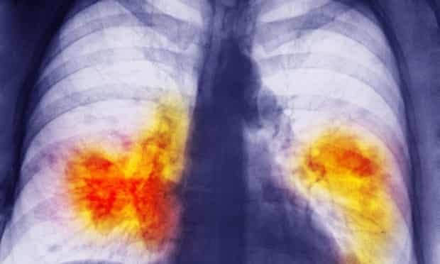 An x-ray showing lung cancer.