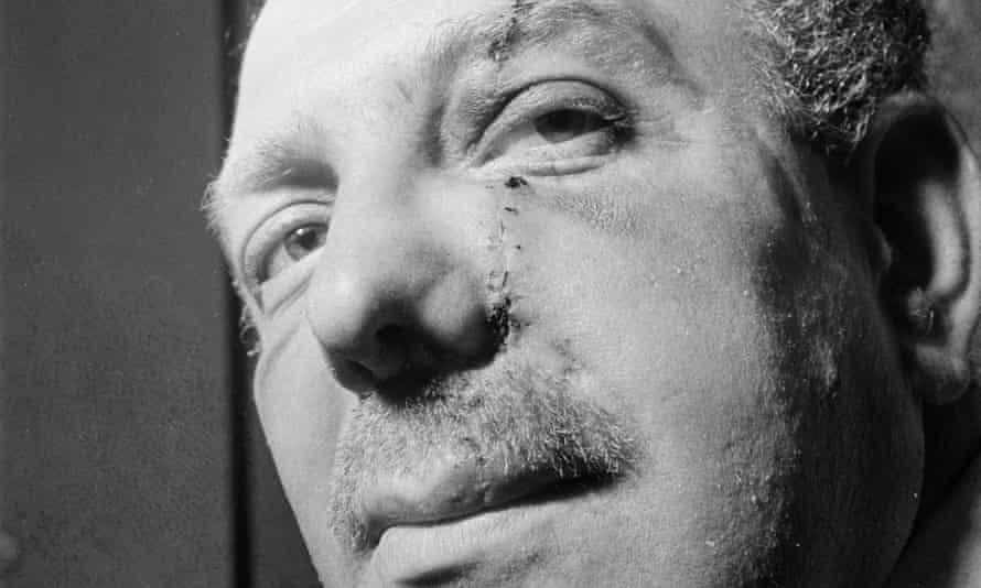 Self-styled King of Soho Jack 'Spot' Comer showing the scar on his face after attack by 'mad' Frankie Fraser.