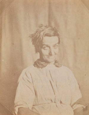 Portrait of a patient, Surrey County Asylum, c.1855.