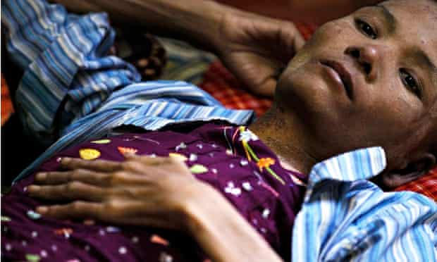 A patient at an HIV/Aids hospice in the suburbs of Rangoon