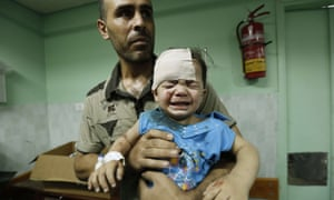 A Palestinian child, wounded in an Israeli strike on a compound housing in Jabalia. The 50-day conflict killed more than 2,100 Palestinians and 72 Israelis