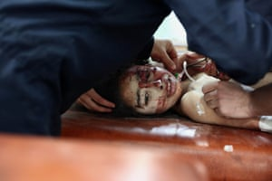 A Syrian girl is treated at a makeshift hospital following an air raid reportedly by forces loyal to president Bashar al-Assad in eastern al-Ghouta, a rebel-held region outside Damascus. Medical care has disintegrated in the country since the conflict erupted in March 2011
