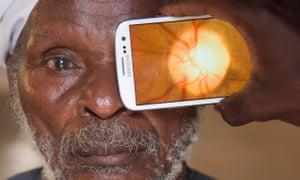 Transforming smartphones … Peek Vision.