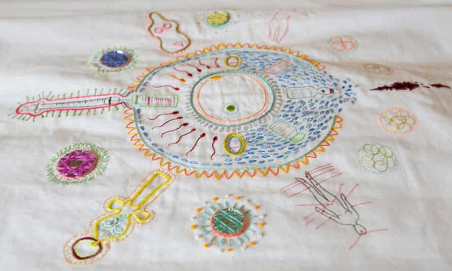 The embroidery on the front of the hospital gown by Tabitha Moses, showing symbols of her IVF experience.
