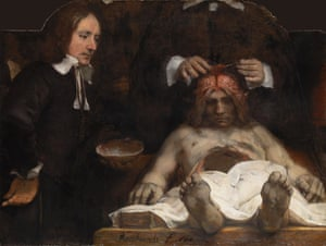 Rembrandt The Anatomy Lesson of Dr Joan Deyman, 1656