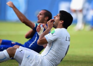 24 June: Luis Suarez of Uruguay clutches his teeth after biting Georgio Chiellini of Italy during the World Cup