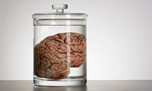 A brain in a speciman jar.