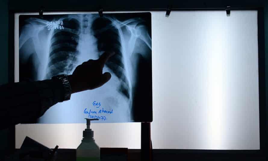 x-rays radiologist