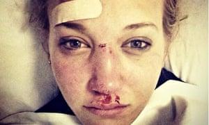 Rowan Cheshire facial injury