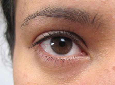 M's eye before the eye cream trial
