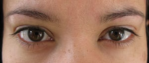 M's eyes after the eye cream trial