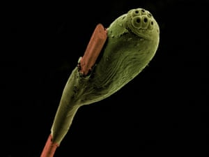 False-coloured scanning electron micrograph of a head louse egg (green) attached to a strand of human hair (brown).