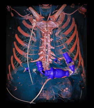 Mechanical heart pump in the thorax, as revealed by a dual energy tomography angiography of a human chest.