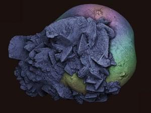 Scanning electron micrograph of a kidney stone (nephrolithiasis).