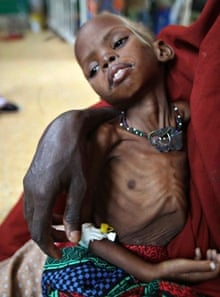 A woman holds her malnourished child