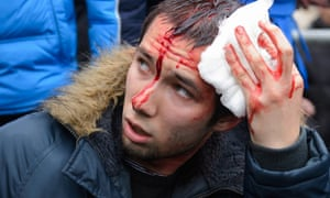A wounded pro-Western activist sits after clashes with pro-Russia activists at the local administration building in the northeastern city of Kharkiv on Saturday.