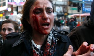 An injured woman with a blooded face is helped after clashes between riot police and protesters during at the Berkin Elvan, in Istanbul.